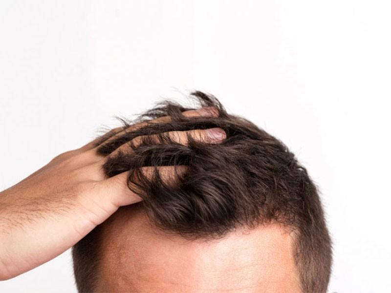 پس از کاشت مو چه مواردی را باید رعایت کنیم؟